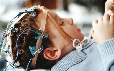 Фокальная эпилепсия у детей - Лето