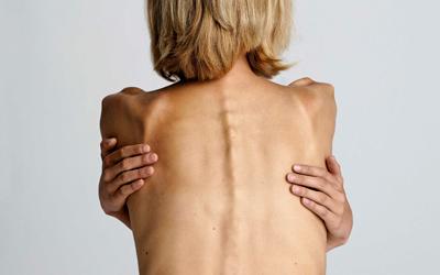 Нервная анорексия - Лето