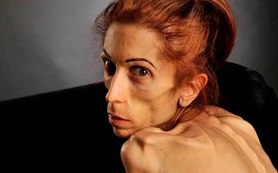 Причины и факторы риска развития анорексии - Лето