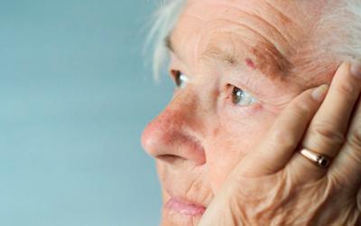 Особенности слабоумия при болезни Альцгеймера - Лето