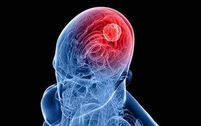 Ишемический или геморрагический инсульт - Лето