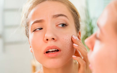 Сухость и шелушение кожи - Лето