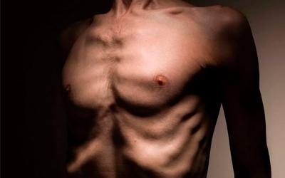 Виды анорексии - Лето