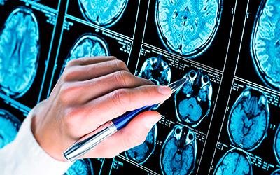 Основные формы бессудорожной эпилепсии - Лето