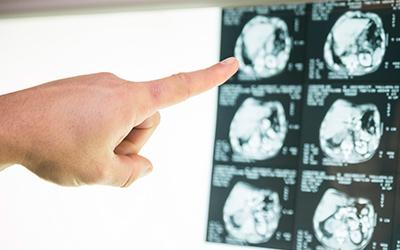 Диагностика сосудистой эпилепсии - Лето
