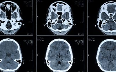 Факторы, предрасполагающие к энцефалопатии посттравматического генеза - Лето