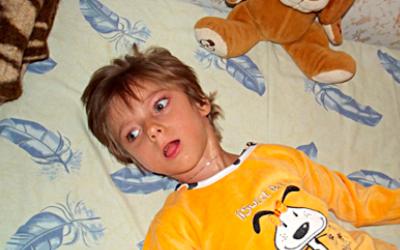 Идиопатическая врожденная эпилепсия - Лето