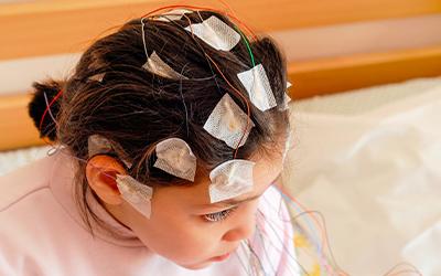 Клиническая картина психической эпилепсии - Лето
