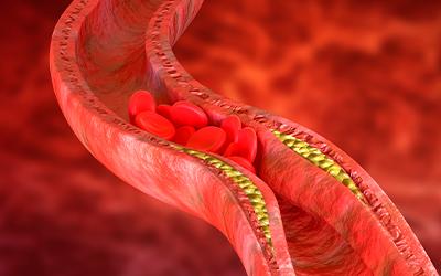 Основные этиологические факторы старческой энцефалопатии - Лето