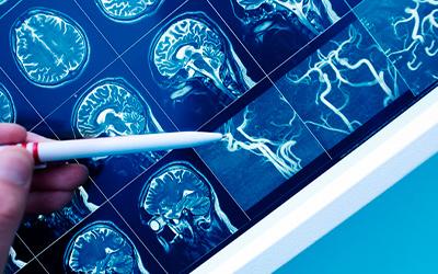 Виды и симптомы эпиприступов - Лето