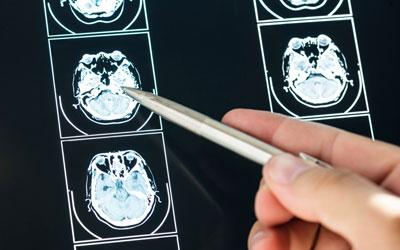 МРТ головного мозга - Лето