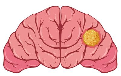 Опухоли мозга - Лето