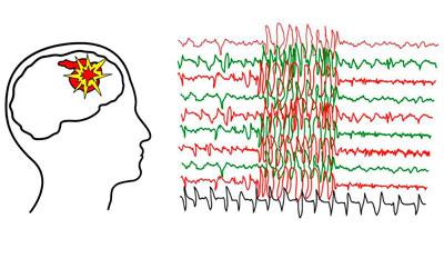 Парциальная эпилепсия - Лето