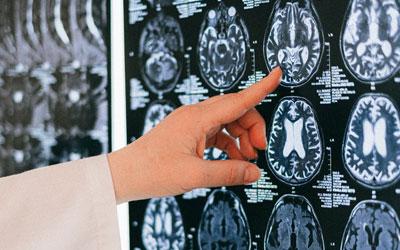 Типы парциальной эпилепсии - Лето