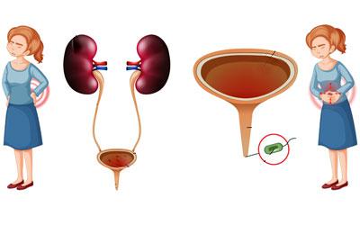 Воспалительные поражения мочеполовой системы - Лето