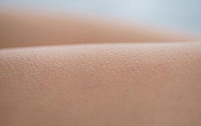 Ощущение мурашек на коже - Лето