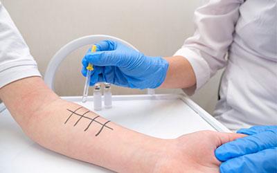 Маркеры на наличие аутоиммунного воспалительного процесса - Лето