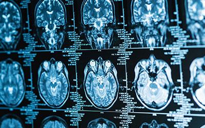 Геморрагический ушиб мозга - Лето