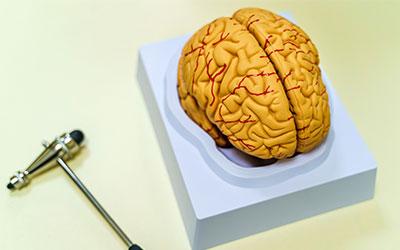 Стенозы мозговых сосудов - Лето